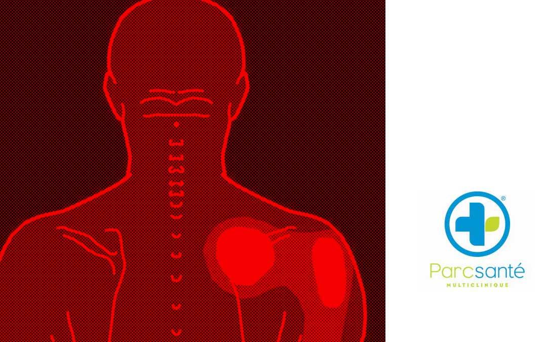 Les Pointés de l'omoplate, un truc pour améliorer la posture des épaules en auto