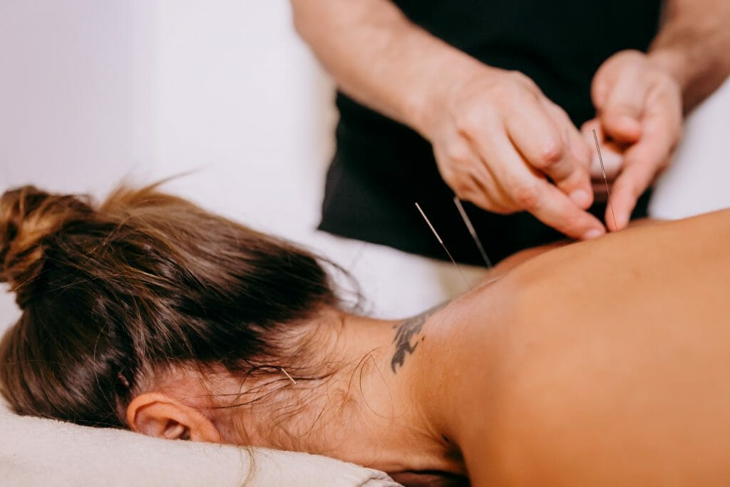 Acupuncture-Aiguille-Blessures sportives