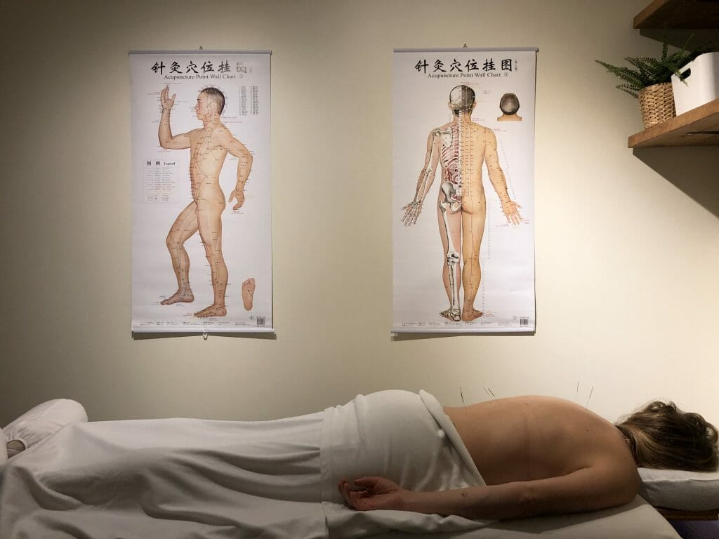 Acupuncture-Parc-Sante